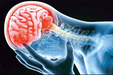 چطور احتمال سکته مغزی را کمتر کنیم؟