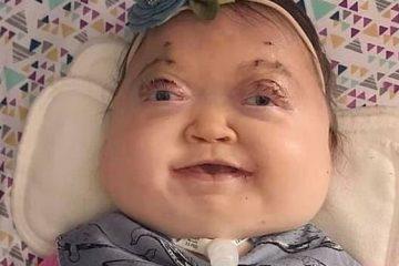 ناهنجاری ژنتیکی فوقالعاده نادر یک کودک+تصاویر