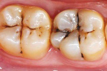 سیستم ایمنی بدن باعث پوسیدگی دندان میشود