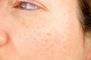 ازبین بردن لکههای تیره روی پوست با این روشها
