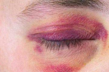 کوفتگی چشم را چه طور درمان کنیم؟