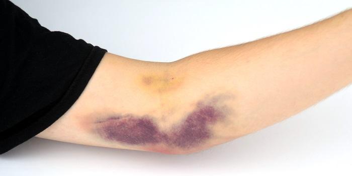 علت و درمان کبودی های بی دلیل رو ی پوست